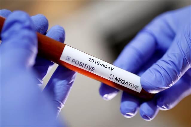 Malezya'da Corona Virüs'ten birinci mevt 1