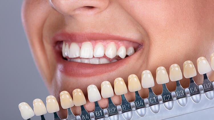 Diş Beyazlatma Hakkında Merak Edilen Her Şey