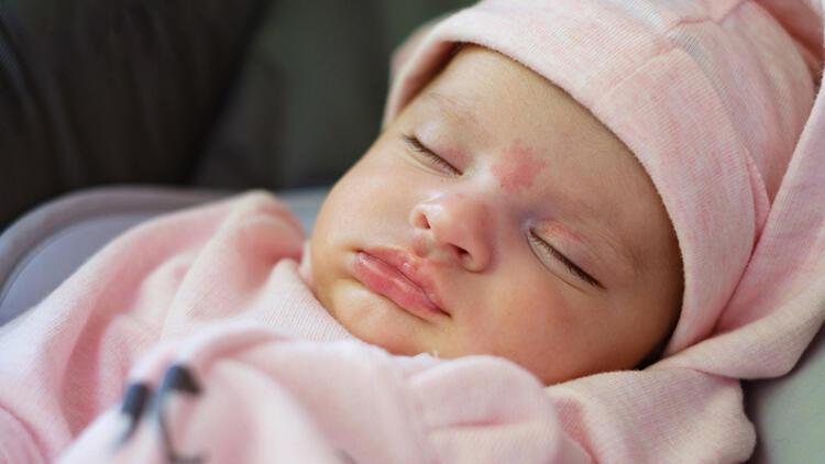 Bebeklerde doğum lekesi neden olur? Doğum lekesi türleri nelerdir?