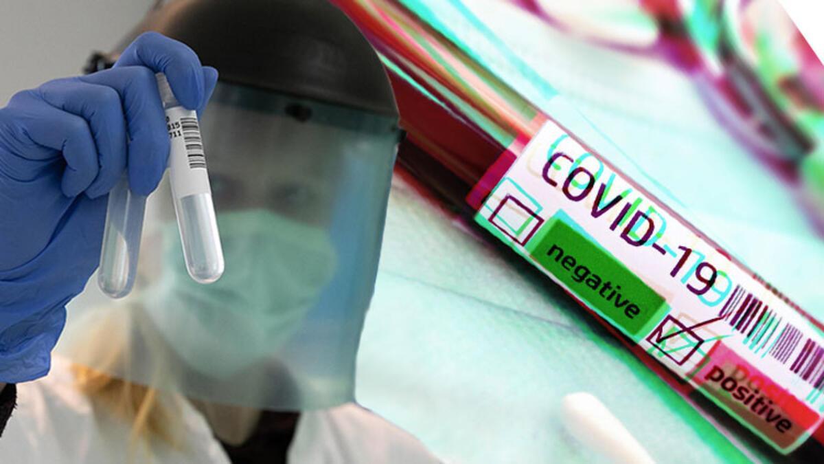 Son Dakika | Corona virüsü aşısı için tarih verdi! Dietmar Hopp'tan müjde...  - Son Dakika Spor Haberleri