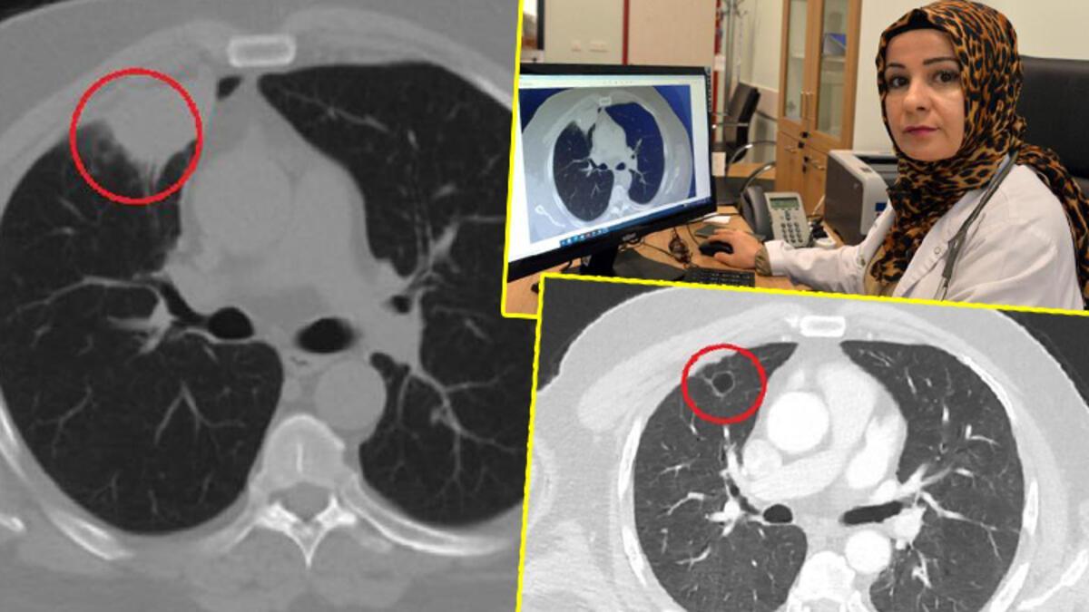Dünya tıp literatüründe bir ilk: Covid-19, akciğer kanserini taklit etti -  Son Dakika Haberleri