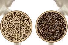Kemik erimesi (Osteoporoz) nedir? Osteoporoz önlenebilir mi?