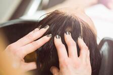 """Saç dökülmelerine kendi hücrelerinizle  """"dur"""" deyin"""