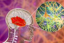 Gri madde (gri cevher) nedir, ne işe yarar? İşte, beyindeki gri maddeyi artıran ve azaltan şeyler