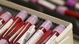 Kan testi yaptır sigarayı bırak