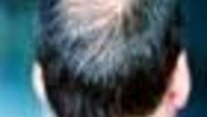 Peruk takmak, saç ektirmek caiz