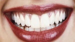 Güzel bir gülüş için kırmızı estetik
