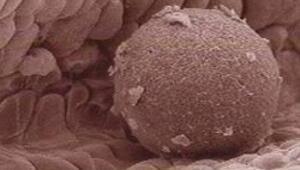 Kök hücreden insan yumurtası