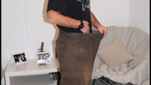 Tüp mideyle 47 kilo verdi