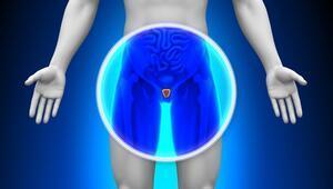 İleri evre prostat kanserine akıllı bomba