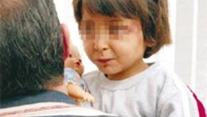 6 yaşındaki kıza maşayla işkence