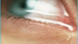 Göz sulanmasını ciddiye alın
