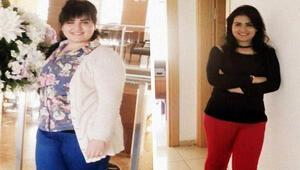 Mide küçülttü 110dan 65 kiloya düştü