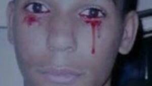 Üzülünce kan ağlıyor