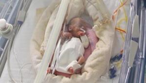 500 gramlık bebeğe kalp ameliyatı