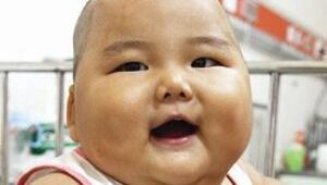 Obezite tehlikesi bebeklikte başlıyor