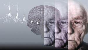 """Ameliyat sırasında Alzheimer """"kapmak"""" mümkün olabilir"""