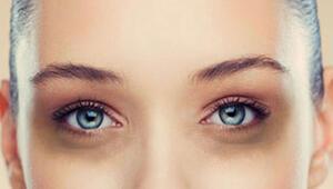 Göz altı morluklarından kurtulma yöntemleri nelerdir