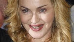Madonna altın diş teli modasına uydu