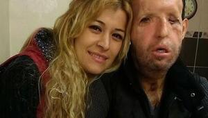 Türkiyenin beşinci yüz nakli hastası Recep Sertin eşi isyan etti
