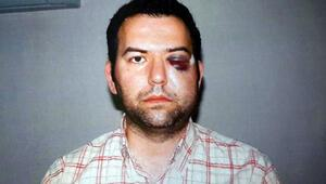 Mahkeme Gezide vurulduktansonra yüzüne platin takılan Başnamlının davasınıreddetti