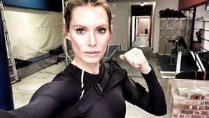 Star Warsta kamera karşısına geçen dublör Olivia Jackson kolunu kaybediyor