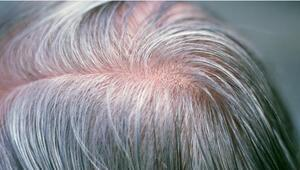 Saçların beyazlamasıyla bağlantılı olan gen bulundu