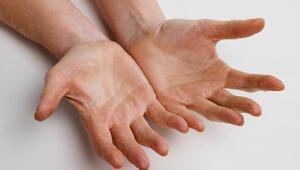 Ellerde uyuşma nedenleri ve tedavisi