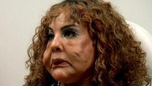 Yasadışı operasyonlarla yüzüne çimento enjekte ettiler... Bakın son hali nasıl oldu...