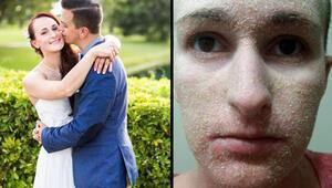 Genç kadının derisi pul pul döküldü