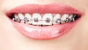 İleri yaşlarda diş teli taktırmak mümkün mü