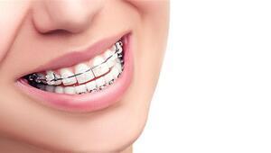 Hızlı diş teli tedavisi fastbraces yöntemi hakkında bilinmesi gerekenler