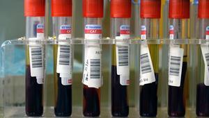 140 liralık kan testiyle kanser tespit edilecek