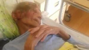 Türkiye onu bu görüntülerle tanımıştı: Yüzündeki yaraların nedeni...