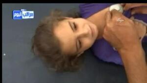Suriyede aşı olan 16 çocuk öldü