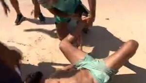 Ahmet Dursun'un Survivor adasında ayağı kırıldı mı
