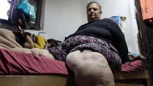 Fil hastası kadının dramı yürek burkuyor