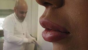 Yaptığı dudak silikonları ile gündeme gelen sahte estetik uzmanı kuaför, hırsızlıktan tutuklandı