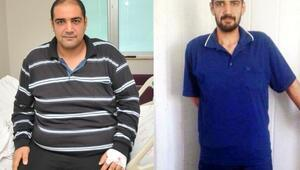 Mide ameliyatıyla 5 ayda 55 kilo zayıfladı