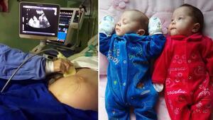 Bitkisel hayattaki kadın 4 ay sonra ikiz doğurdu...