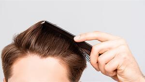 DHI saç ekimine nasıl hazırlanılır