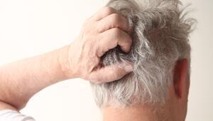 Saçınızın kepeklenmesinin 5 nedeni
