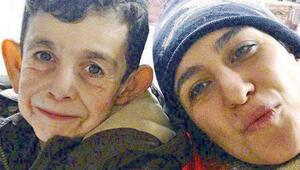 Suriyeli 'Benjamin Button'ın hayatı  bir fotoğrafla nasıl değişti