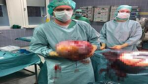 Hamile sandılar... Karnından tümör çıktı