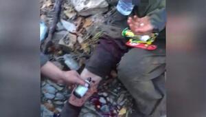 Mehmetçik yaralanıp teslim olan PKKlı kadın teröristi çatışma bölgesinde tedavi etti