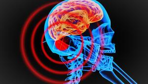 Bilim insanları kesik baştaki beyni 36 saat yaşattı