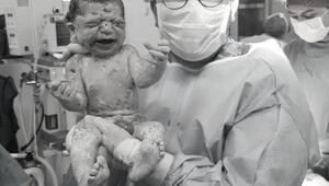 Sezaryenle doğan bebek hayata 1-0 yenik başlıyor