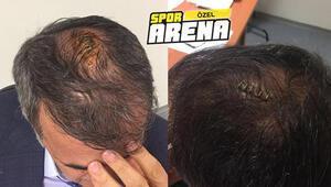 Prof. Dr. Aydın, Şenol Güneş hakkındaki spekülasyonlara yanıt verdi: Saçlı deride kan vardı