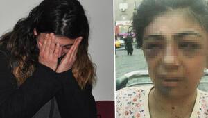 Tornavida ile eşini yaralayan kocaya 2 yıl hapis