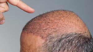 Saç dökülmesi neden olur Saç ekiminde nelere dikkat edilmelidir